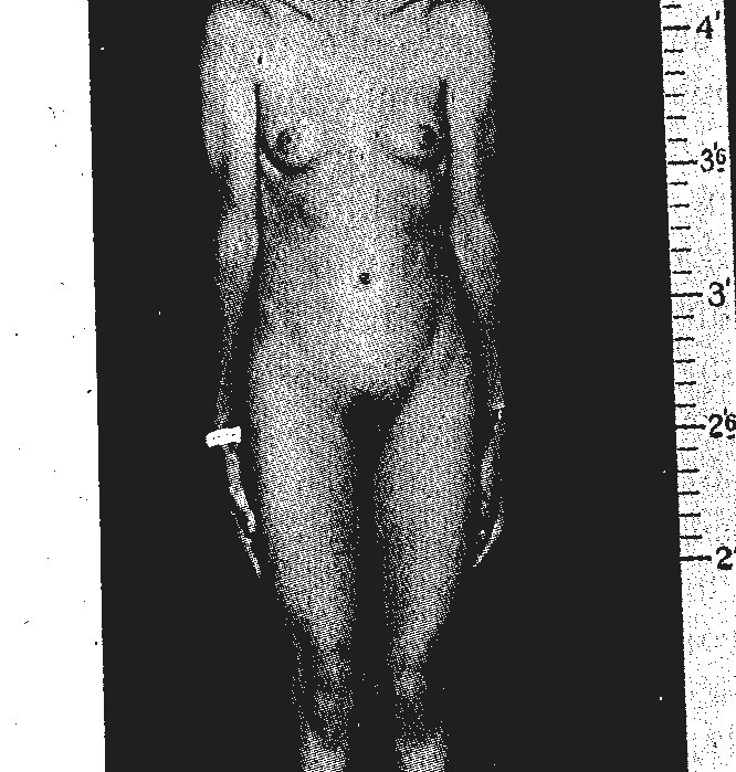 Pictures of hermaphrodite genitalia on humans